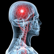 How to Control Your Stroke Risk